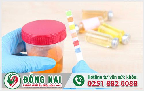 Cách chữa tiểu ra máu ở bệnh lậu hiệu quả nhất hiện nay, chi phí hợp lý