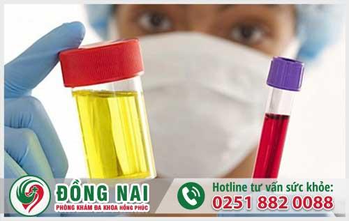 Tiểu ra máu mủ ở nữ nguy cơ mắc bệnh lậu cao, và cách chữa hiệu quả hiện nay